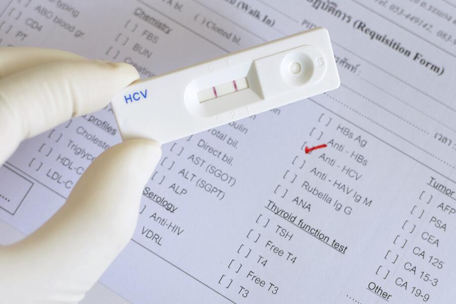 Биохимический анализ крови. Какая норма АЛТ и АСТ