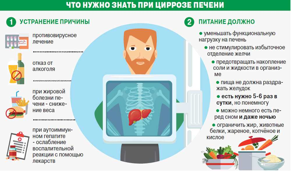 Гепатит С при циррозе печени