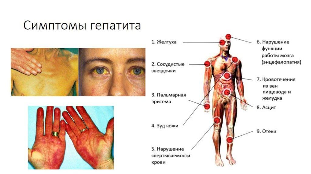Всегда ли гепатиты В и С нуждаются в лечении