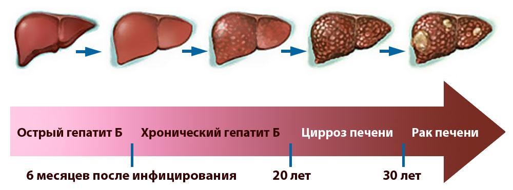 Симптомы, диагностика гепатита В