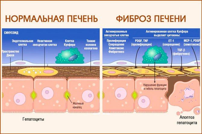 Стадии фибриоза печени