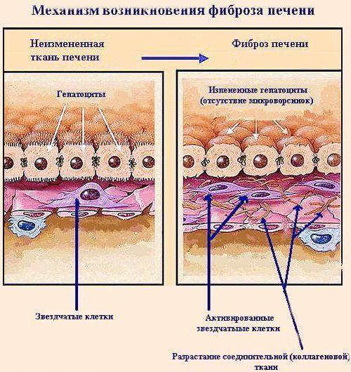 Что такое фиброз печени и как лечить заболевание