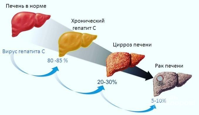 Методы лечения гепатита С