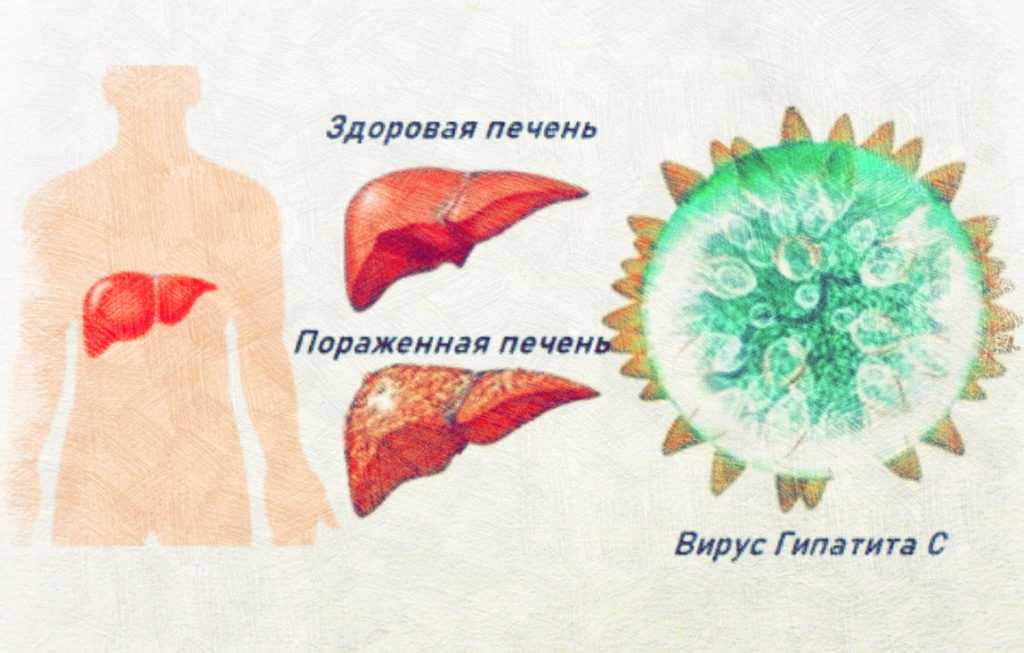 Что болит при вирусном гепатите С