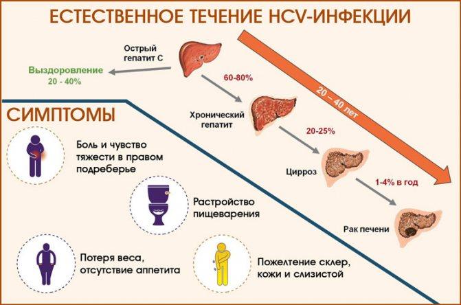Как определить и снизить вирусную нагрузку при гепатите С
