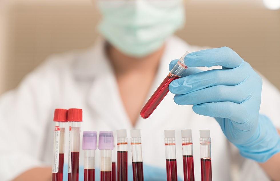 Диагностика гепатита С. Как применяется
