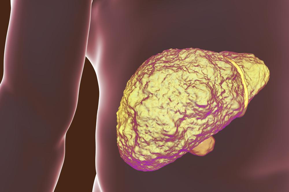Способы лечения гепатита С хронической формы при развитии цирроза печени
